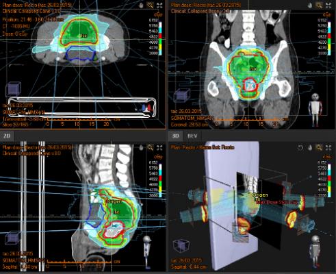 cáncer de esófago y estómago